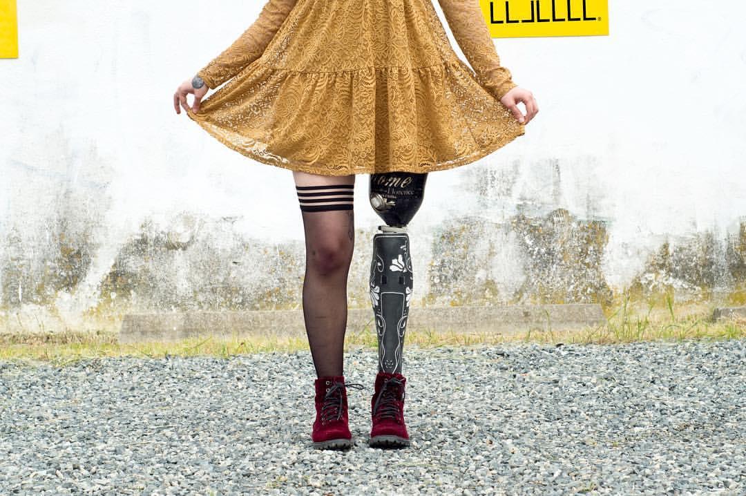 Populaire Alleles : les prothèses design, graphiques et sur mesure UD64